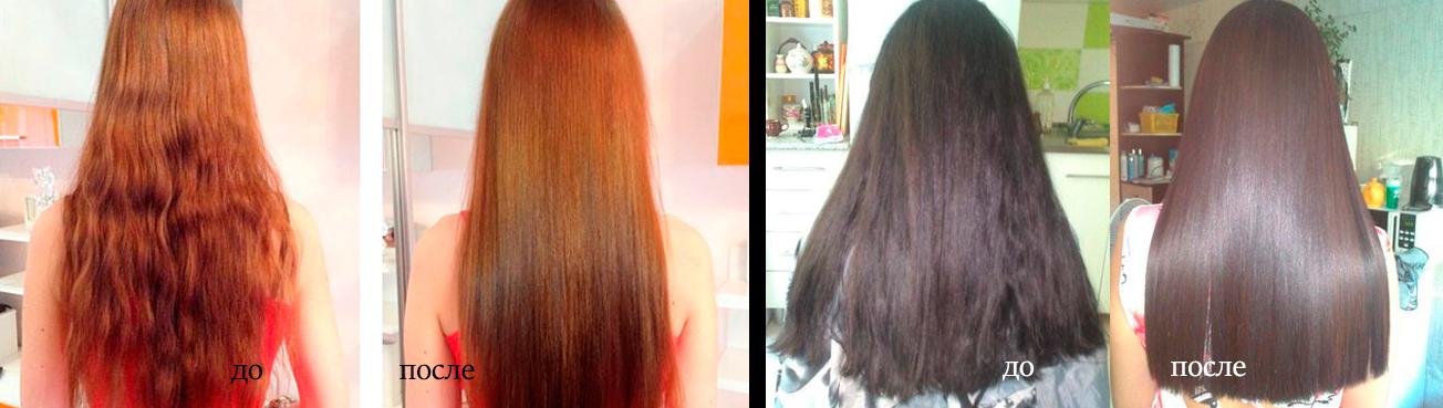 Saç biyolaminasyonu: yöntemin avantajları ve dezavantajları 46