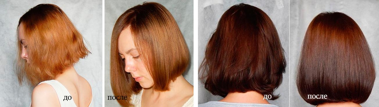 Saç biyolaminasyonu: yöntemin avantajları ve dezavantajları 99
