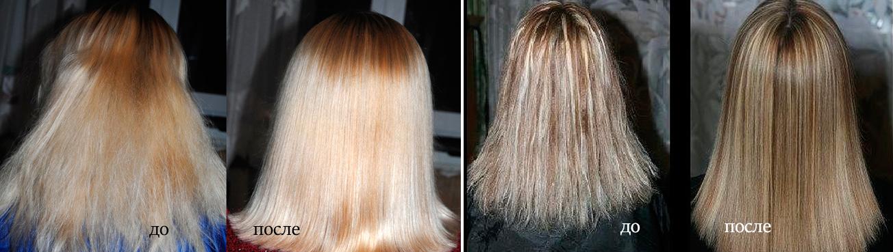 Saç biyolaminasyonu: yöntemin avantajları ve dezavantajları 70